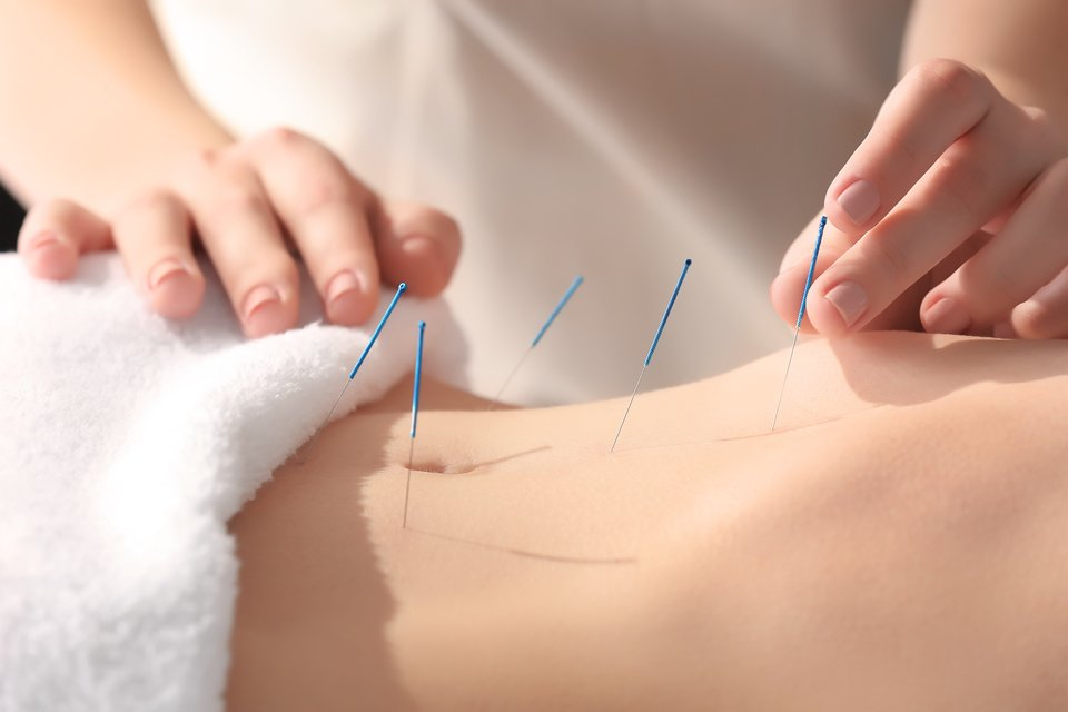 Acupuncture Etobicoke